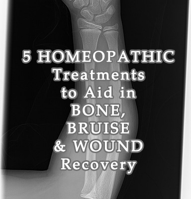 5 Homeopathic Treatments to Aid in Bone, Bruise, and Wound Injury Recovery