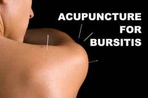 Acupuncture for Bursitis