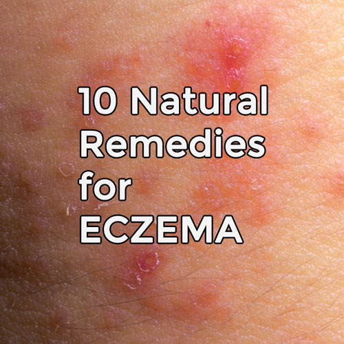 10 Natural Remedies for Eczema post image